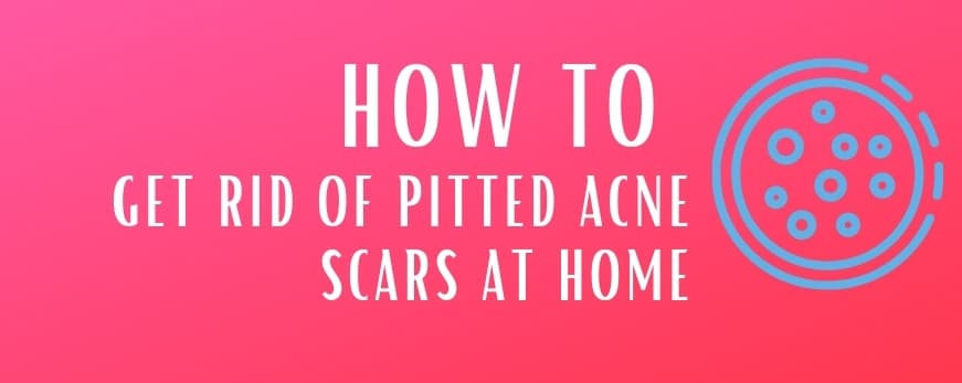 Tips to Get Rid of Pitted Acne Scars at Home